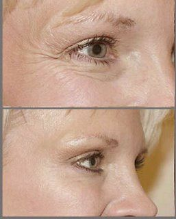 Botox Before and After Photos : IAPAM