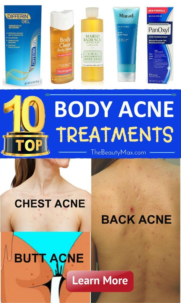The Best Body Back Acne Treatment Products Reviews Korper Akne Akne Behandlung