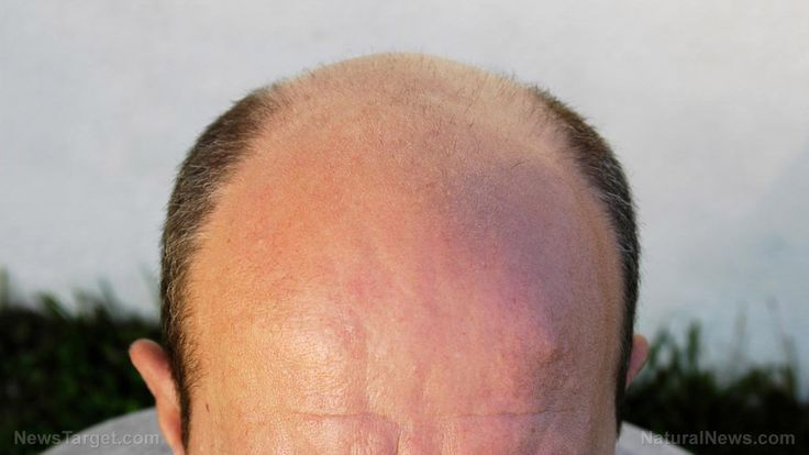 Female Baldness Cure #hairlosscourse