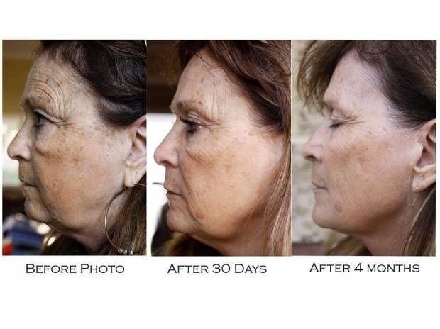 Resultados de Nerium-Optimera en sólo cuatro meses http://beautyskin1.nerium.com