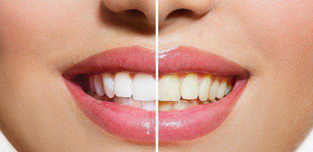 Bu karışım dişleri 3 dakikada bembeyaz yapıyor
