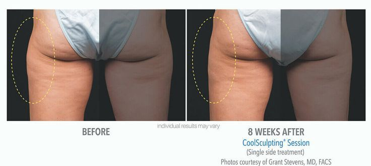 coolsculpting_before_and_after_cool-sculpting_skinney_medspa_3 – #coolsculptingb…