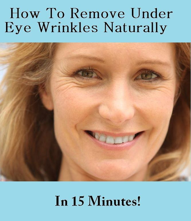 How To Remove Under Eye Wrinkles Naturally In 15 Minutes!