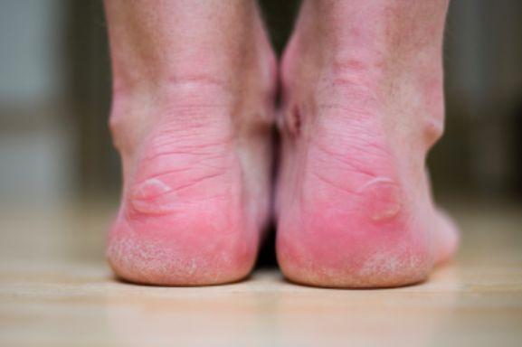 Comment soigner une ampoule avec une pomme de terre ? noté 5 - 1 vote Au terme d'une randonnée, aïe, une douleur vous empêche de marcher correctement. Une ampoule s'est formée sur votre pied. Pour la soigner rapidement, pensez à la pomme de terre ! Grâce aux acides phénoliques et aux vitamines qu'elle contient, la...