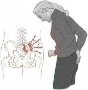 Quiropraxia a melhor opção para dor nas articulações Sacro Ilíaca