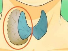 Tiroidi bitiren doğal yöntem! İlaçlardan kurtulacaksınız!