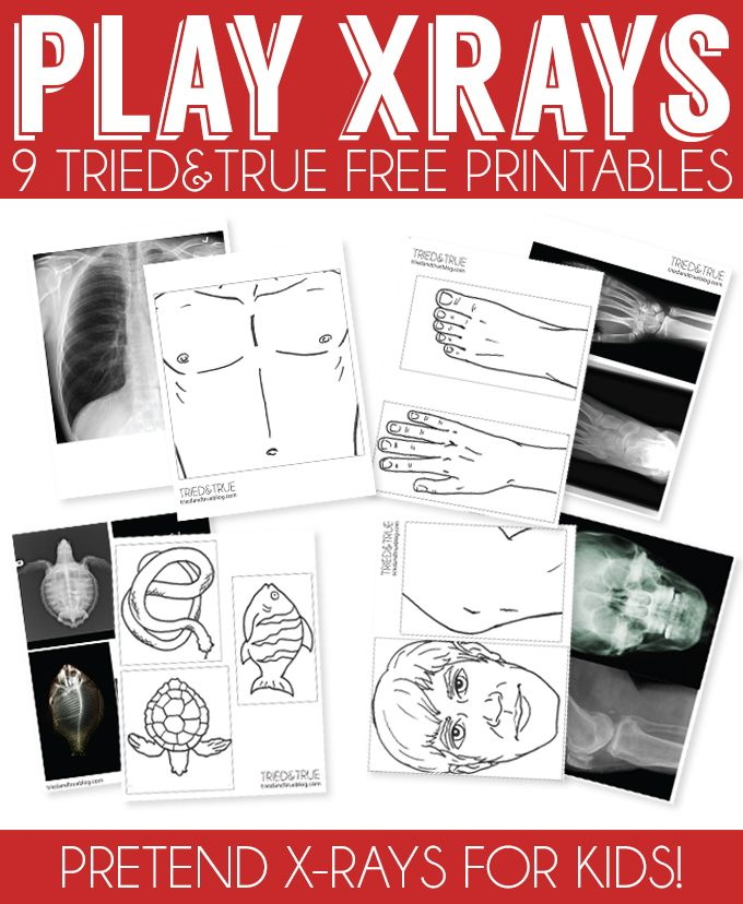 My 4 year old son has been fascinated with the inner workings of our bodies lately so I went looking for x-rays that we could use with our light table to fully explain skeletons to him. Unfortunately, all the pins I found either went to forbidden pages or items for sale. Oh well, guess I'll... Read More »