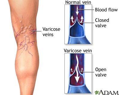 A princípio, aquelas veias dilatadas, de aspecto tortuoso, cor azulada e que ficam bem visíveis na batata da perna podem representar soment...