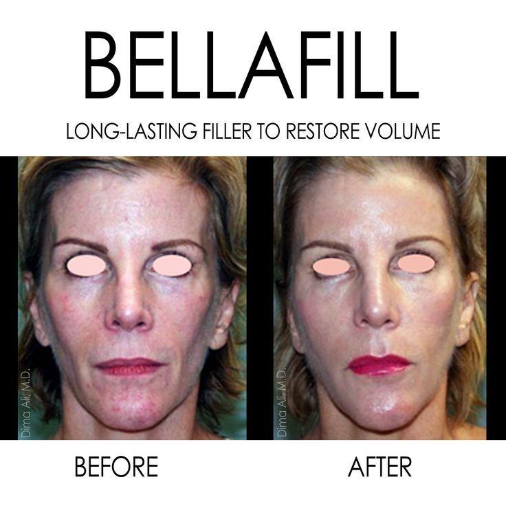 Bellafill – #Bellafill