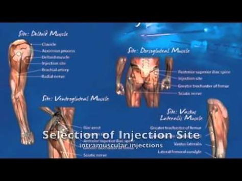 ▶ Intramuscular Testosterone Injection Techniques - YouTube