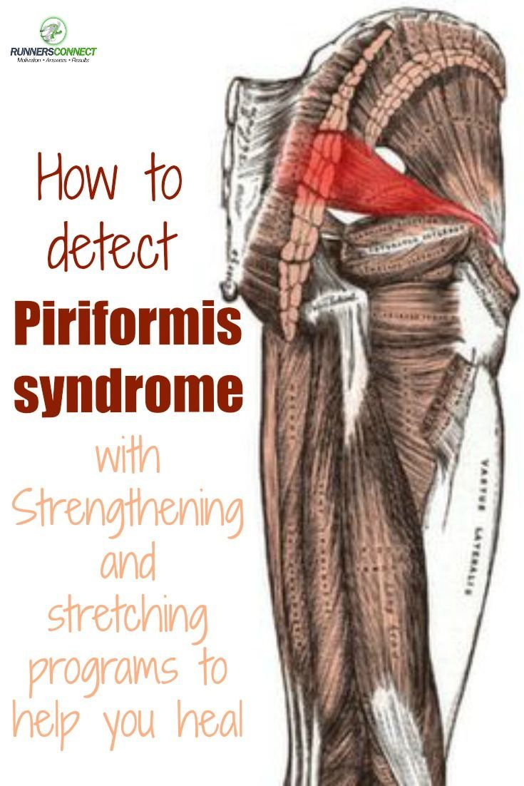 A great site dedicated to the piriformis. Another Pinner posted: How to detect piriformis syndrome and a specific strengthening and stretching program to help you return to healthy training