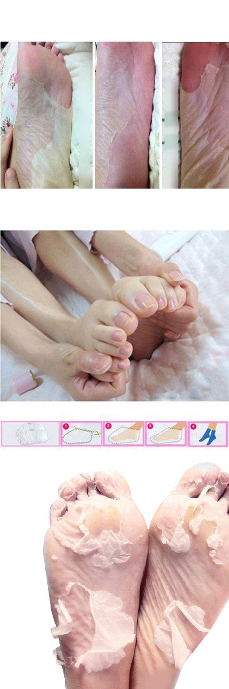 [Visit to Buy] 5Pair=10Pcs Baby Feet Skin Smooth Exfoliating Foot Mask Foot Care Mask Foot Care Health Care Pedicure Socks Sosu Peeling Foot #Advertisement