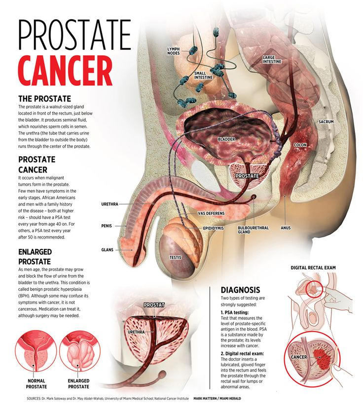 107 best prostate cancer images on pinterest | prostate cancer, Cephalic Vein