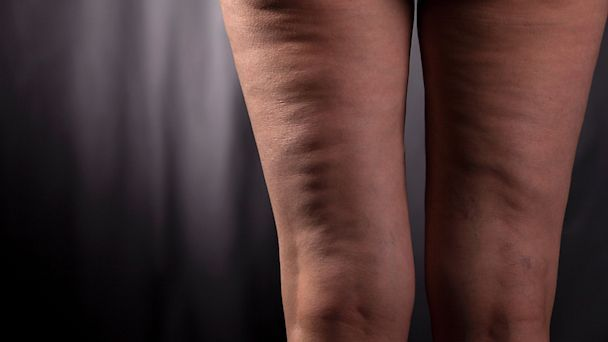 Its tragic what cellulite does to beautiful legs! We need to fight back!