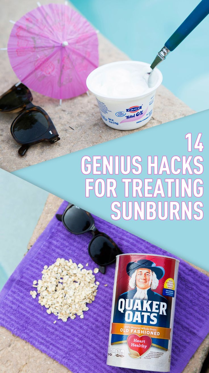 These genius tips for treating sunburn will change summer FOREVER.