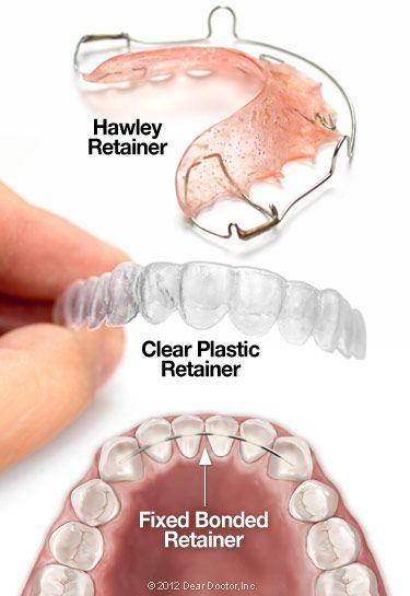 Types of orthodontic retainers. Visit hatcherorthodontics.com