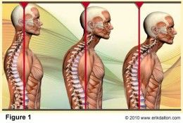 This extreme rounding of the upper back can cause pressure on the abdomen and lungs.