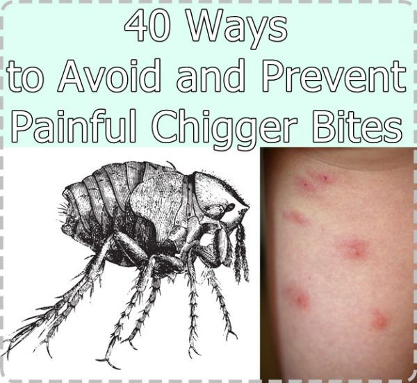 40 Ways To Avoid And Prevent Painful Chigger Bites Homesteading