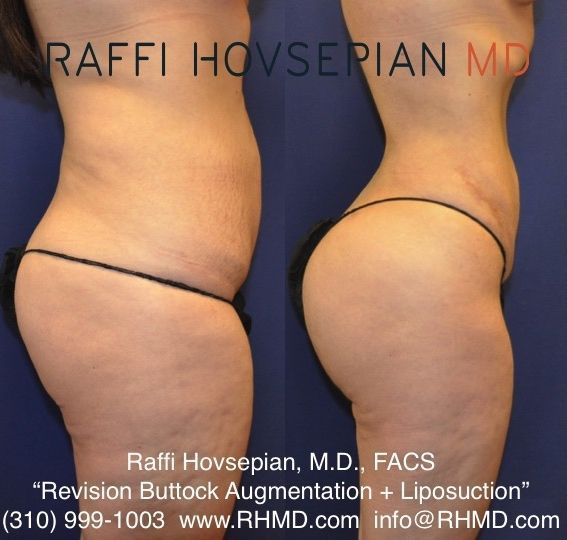 Body Transformation by Dr. Raffi Hovsepian! This patient of Dr. Hovsepian underw