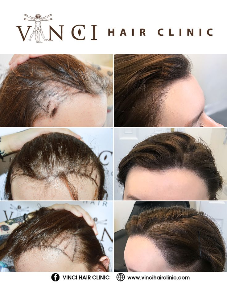 It S Time To Talk About Female Hair Loss Vinci Hair Clinic Hair Transplant Women Hair Loss Women Hair Restoration