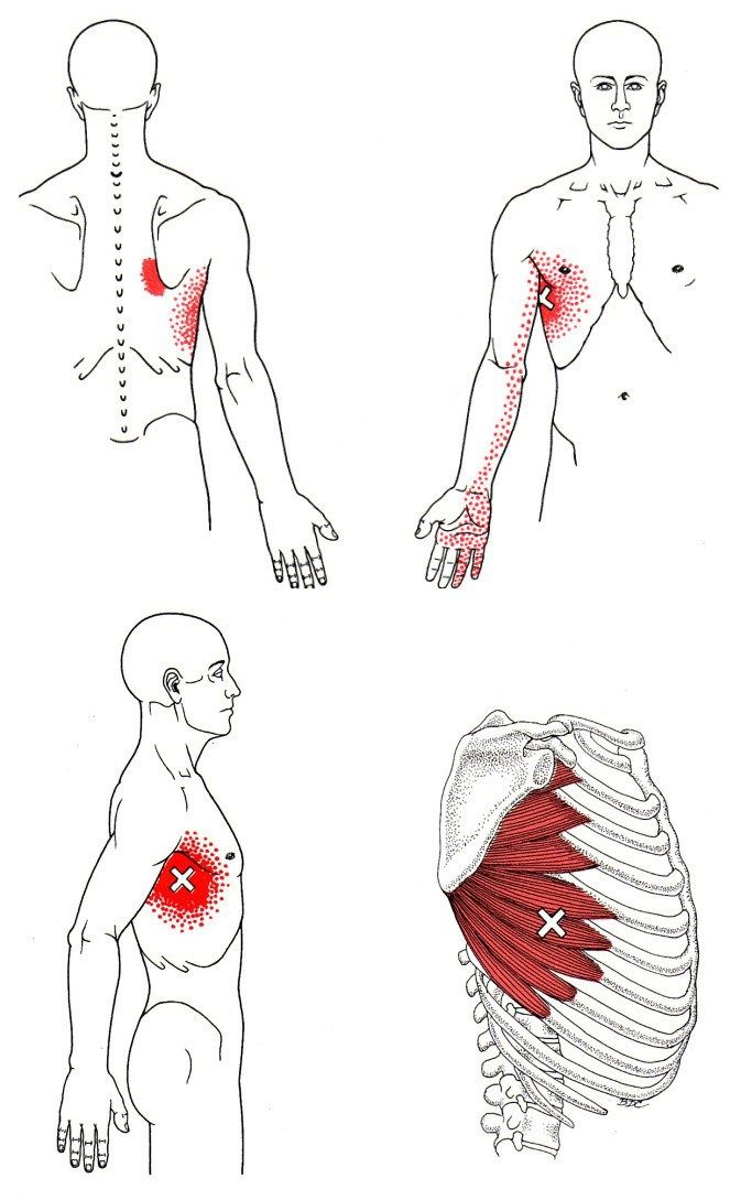 Trigger points of Serratus Anterior, the rounded-shoulder muscle