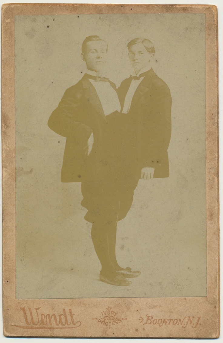 """Siamese Twins cabinet card photographed by Wendt.  Stamped on back """"Adolph Rudolph 27 Years Old Born Vienna Austria""""."""