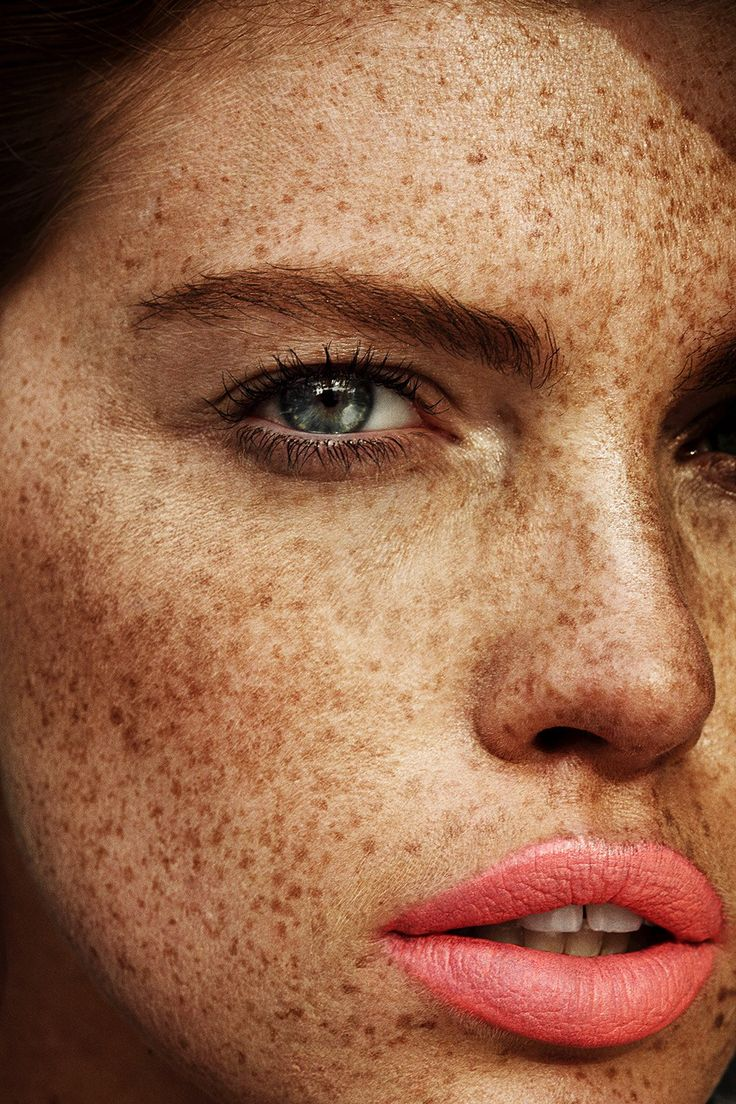 Post Contains: Cosmopolitan beauty, Model Kate Potter, sun protection, skin care, sun tanning, sunbathing, cosmopolitan magazine, cosmo, US cosmo, models with freckles, uv rays, uv protection, bea...