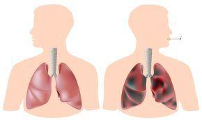 """Die COPD- Erkrankung wird auch als """"Raucherlungen-Erkrankung"""" bezeichnet. Lesen Sie in diesem Artikel, was die Schüßlersalze hierbei für Sie tun können."""