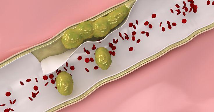 3 лечебных настоя, чтобы укрепить и очистить вены и артерии!