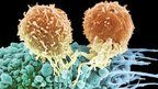 Two T-cells on the surface of a cancerous cell