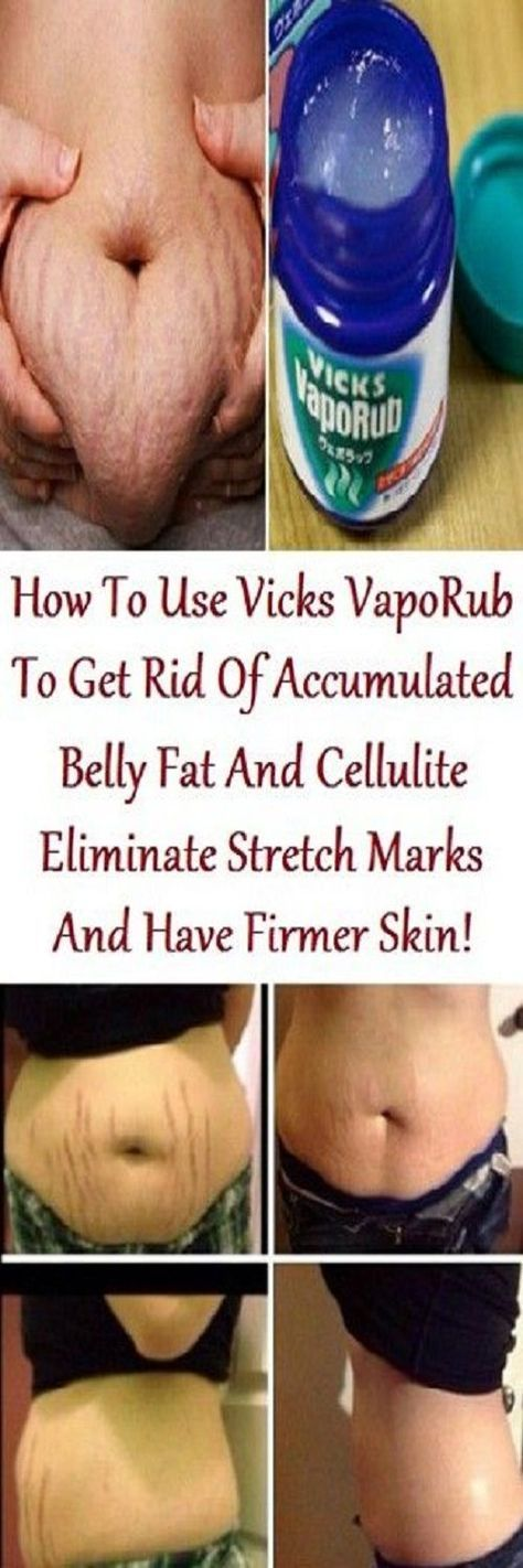 How to Use Vicks VapoRub to Get Rid of Accumulated Belly ...