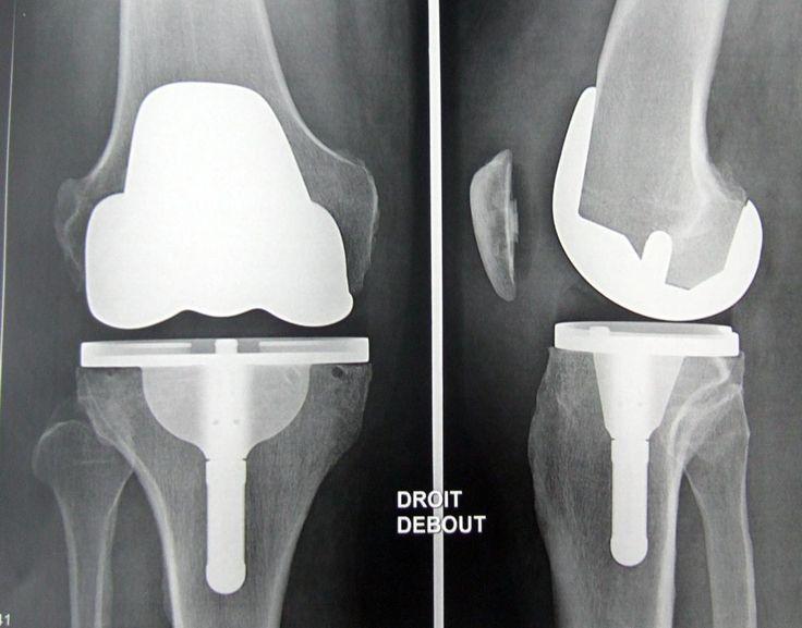 chirurgie du genou | Prothèse Totale Du Genou Pictures to pin on Pinterest