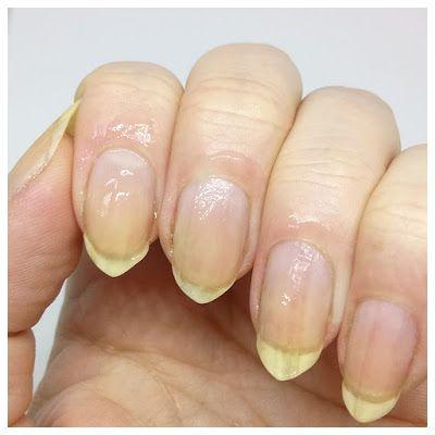 Dile Nails: Ensikosketus - Ruby Wings