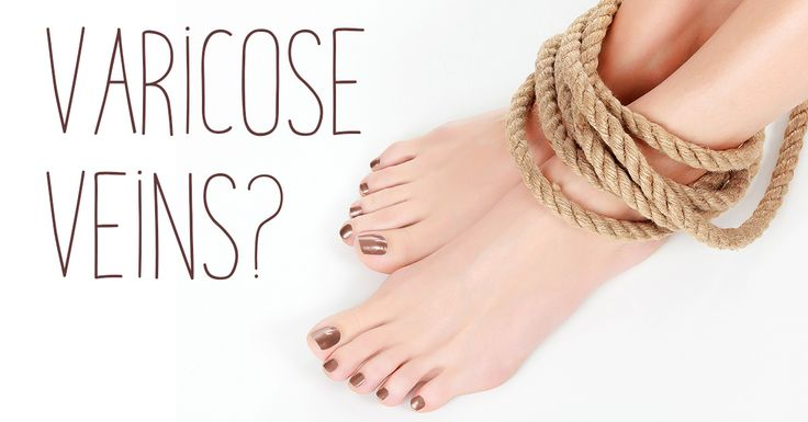 Medical and surgical treatments for varicose veins can be quite expensive. Fortunately, there are cost effective home remedies that can decrease the severity of varicose veins and also reduce some of the discomfort they can cause. Here are 8 home remedies for varicose veins you may not have heard of.