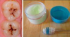 Cure las caries, enfermedades de las encías, placa dental, y blanquee los dientes con esta pasta de dientes natural hecha en casa | DePapel7