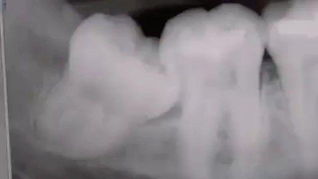wisdom tooth extraction #teeth#tooth#toothless#extraction#cirugiabucal#oralsurgery#dental#dentist#dentistry#matteonegri#dentalhygiene#dentalassistant#dentalschool#dentalstudent#dentalhygiene#implant#implants#odonto#odontogram#odontologo#odontolove#odontología#odontologia#odontogram#odontoporamor#estomatología#prosthesis#prosthodontics#ortho#braces#smile#drawing