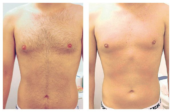 Laser IPL hair removal for man before and after. http://www.ipl-hair-removal-reviews.com/