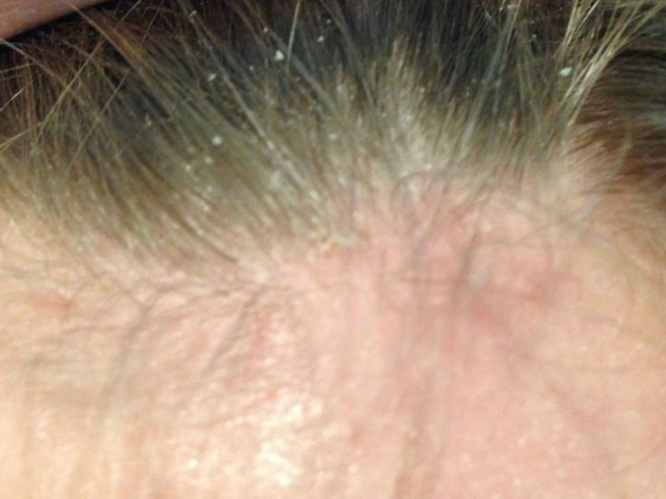 Seborrheic dermatitis or what we all know as dandruff is a very common disorder of the scalp. Oftentimes, the cause is dry skin, but irritated oily skin, fungal and bacterial growth, and inflammatory conditions can lead to dandruff. Although it is usually not a serious problem, it can cause discomfort because it is extremely itchy.…