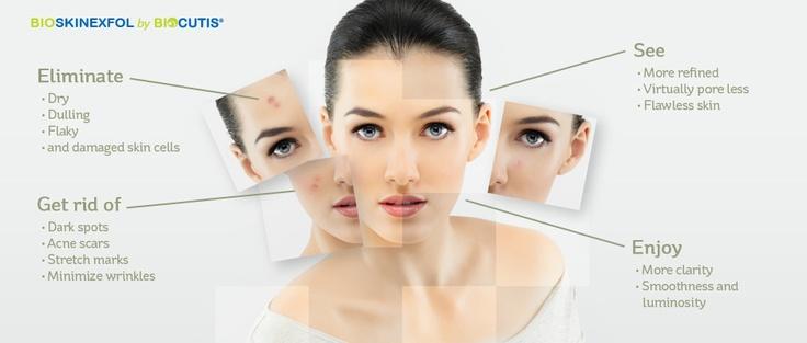 Home Microdermabarsion Cream - Bio Micro-Dermabrasion Skin Resurfacing
