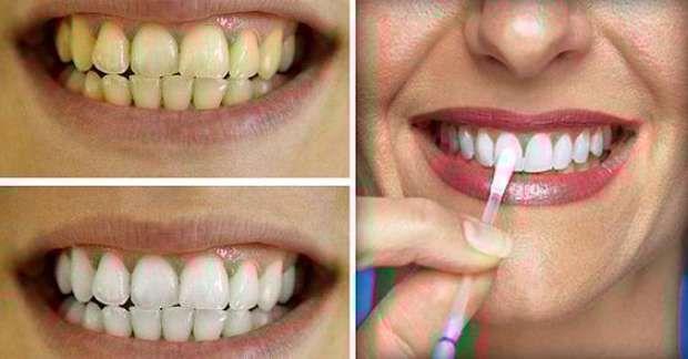 Vinagre de manzana para blanquear los dientes