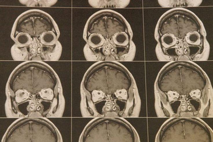 Primeros síntomas de un tumor cerebral   Muy Fitness