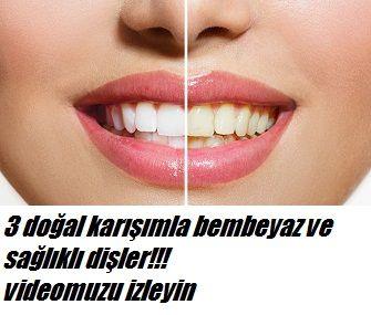 3 Doğal karışımla bembeyaz dişler Kimyasal içerikli ürünleri kullanmadan doğal olarak dişlerinizi kar gibi yapabilirsiniz