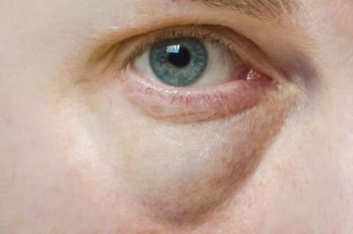 How to Get Rid of Bags Under Eyes? (Fast & Quickly)