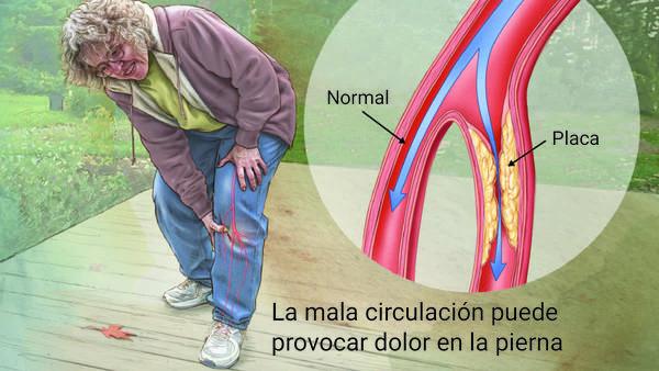 arteria en dolor de pierna
