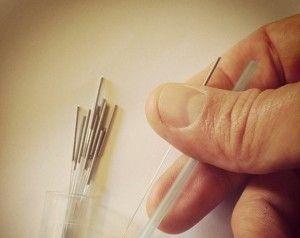 Síndrome de fatiga crónica: tratamiento con acupuntura