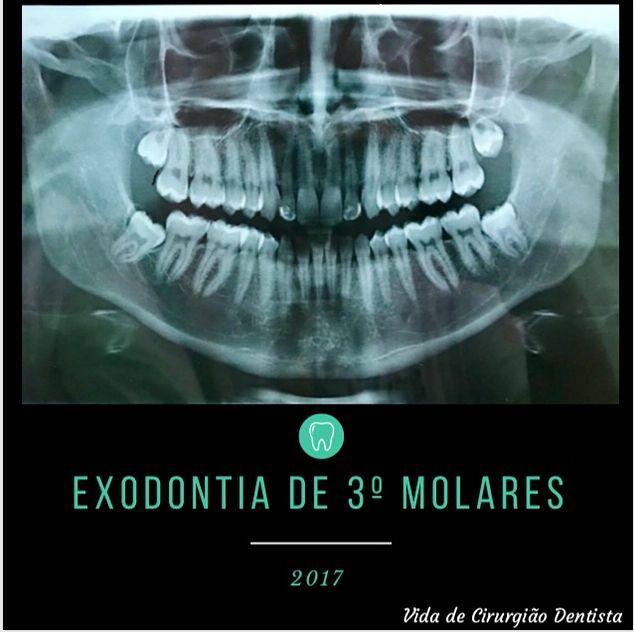Boa tarde seguidores mais uma das minhas cirurgias. Exodontia de 3º molares inclusos. O que são dentes do siso ou terceiros molares? Os terceiros molares ou dentes do siso são os últimos dentes a serem formados e geralmente deveriam aparecer na cavidade bucal entre os 16 e 24 anos. Devido a alterações evolutivas e dos hábitos da raça humana a maioria das pessoas não possuem espaço suficiente nas arcadas para que estes dentes se encontrem bem-posicionados o que pode levar a diversos…