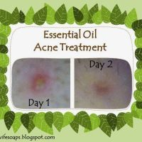 DIY Essential Oil Acne Treatment for Existing Blemishes