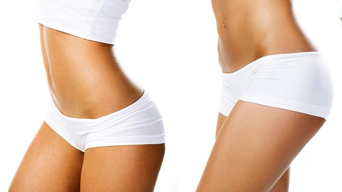 blog about tummy tuck surgery, tummy tuck scars and tummy tuck recovery