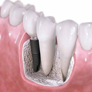 This Fundamentals are Cosmetic Dental Implants. Visit here for details. http://www.byarsdental.com/kansas-city-dentist-liberty-missouri/library/implants.htm