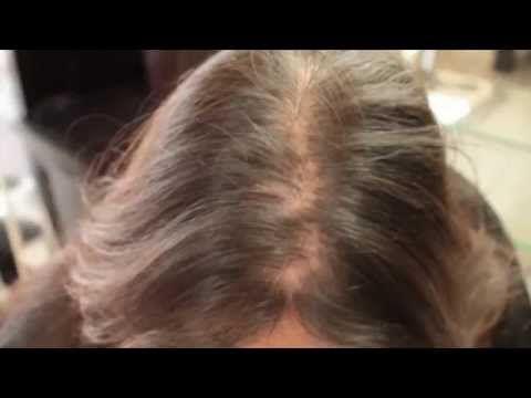 Hair loss in women treatment Testimonial   hair cubed - http://hairregrowthnews.com/hair-loss-in-women-treatment-testimonial-hair-cubed/